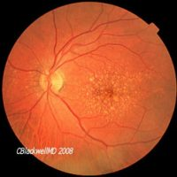 The Ageing Retina - An Introduction to Macular Degeneration