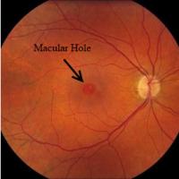 Macula Hole