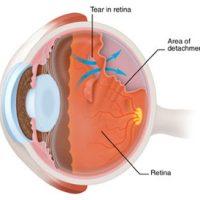What is a Retinal-Detachment ?